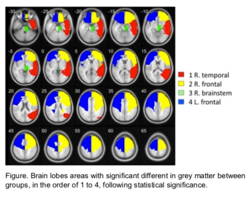 Sahaja Yoga meditation brain lobes study